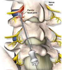 Facet joint Injections - Welcome Back Clinic - MRI and Pain